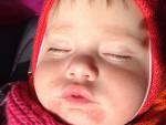 Диатез на лице у ребенка